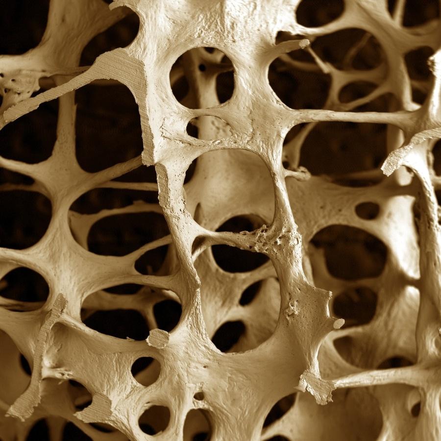 Mikroskopická snímka kostného tkaniva postihnutého osteoporózou. (Foto: archív)